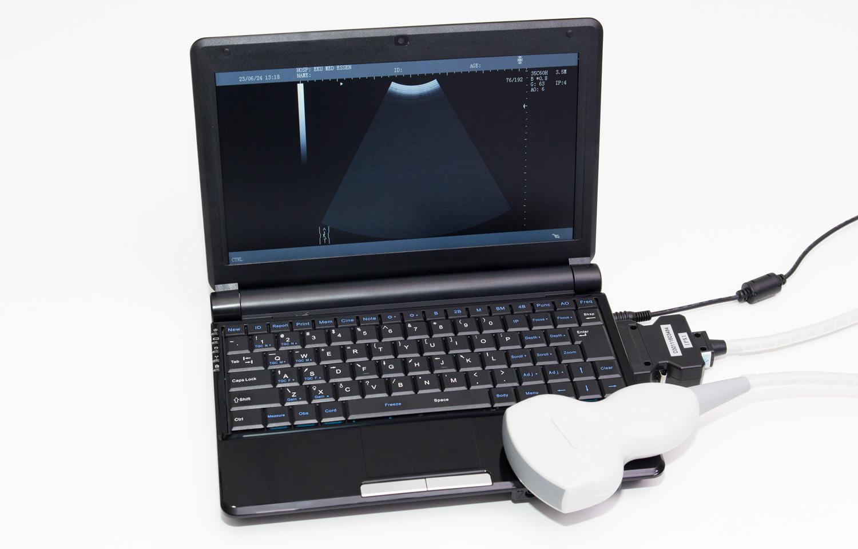 eku-scan-3000_a