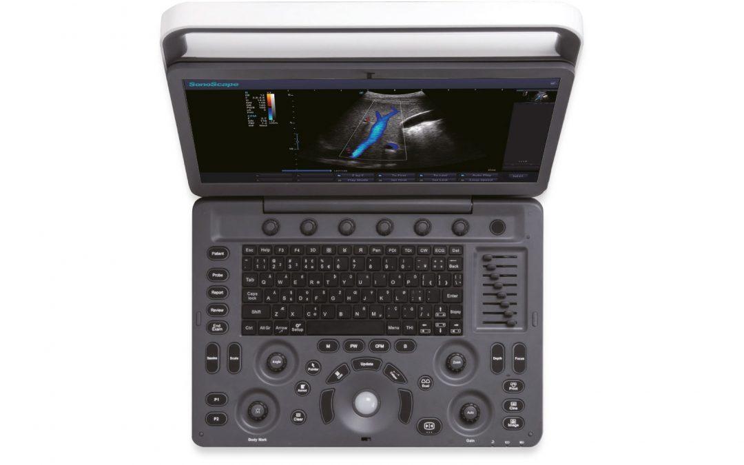 Sonoscape E2 Ultraschallgerät